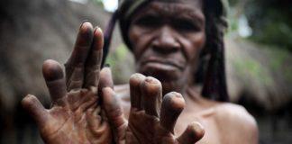 Mengenal Tradisi Potong Jari Suku Dani Sebagai Simbol Kehilangan